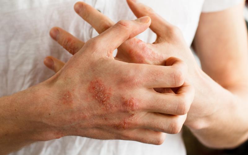 eksem på hænder